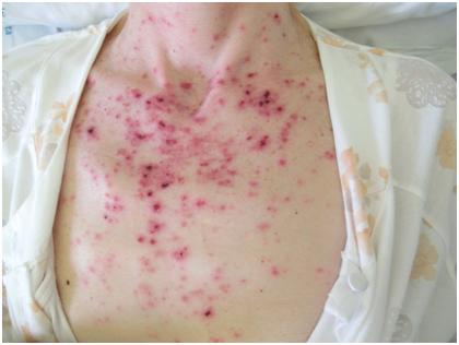 Ruolo del dermatologo nella diagnosi internistica: Lupus Eritematoso Sistemico