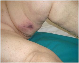 Lesione necrotico-emorragiche in paziente emodializzata