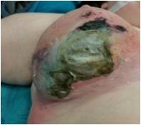 Ulcera necrotica mammaria trattata con pressione negativa ed innesti epidermici frazionali