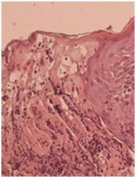 Herpes Simplex perianale ulcerativo