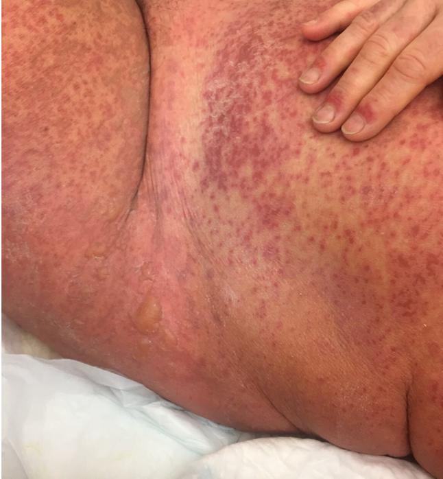 L'utilizzo degli anti-TNFalfa nel trattamento della necrolisi epidermica tossica