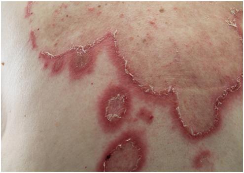 Eruzione LUPUS-LIKE indotta da farmaci ANTI-HER2