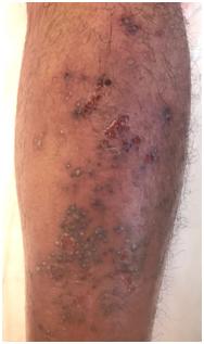 Eruzione pustolosa in paziente atopico