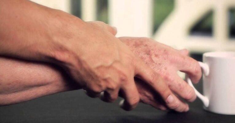 Associazione tra malattia di Parkinson e melanoma: Nuove evidenze cliniche e sperimentali