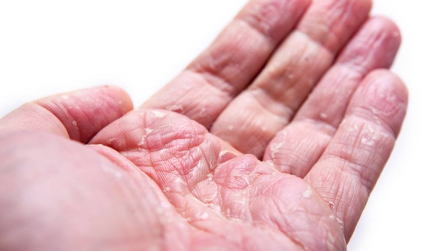 L'utilizzo dell'alitretinoina nella dermatite cronica delle mani: esperienza di un centro dermatologico canadese