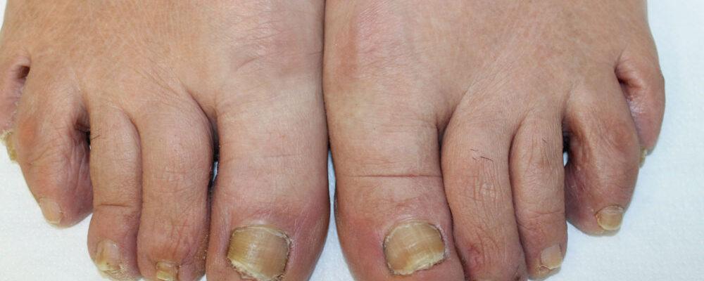 Dermatite cronica delle mani e spondiloartrite: psoriasi?