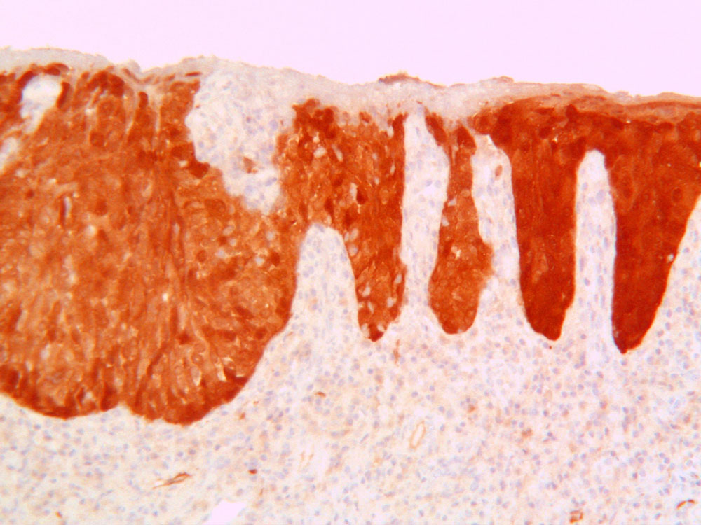 Carcinoma squamocellulare basaloide HPV-correlato del pene