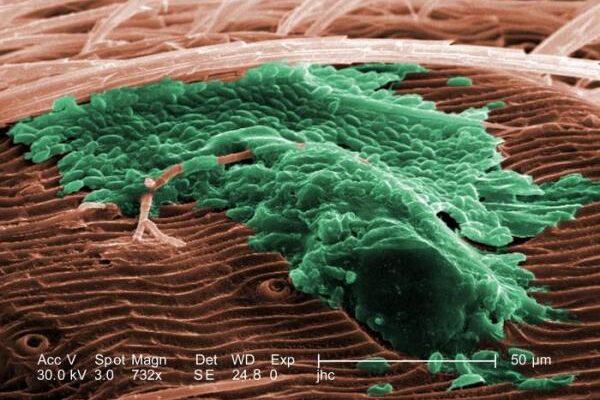 IL BIOFILM BATTERICO: Update su ruolo nelle differenti affezioni dermatologiche e possibili strategie terapeutiche