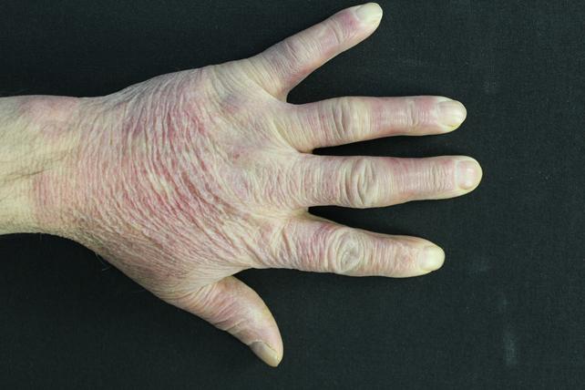 Un raro caso di papular gloves and socks syndrome