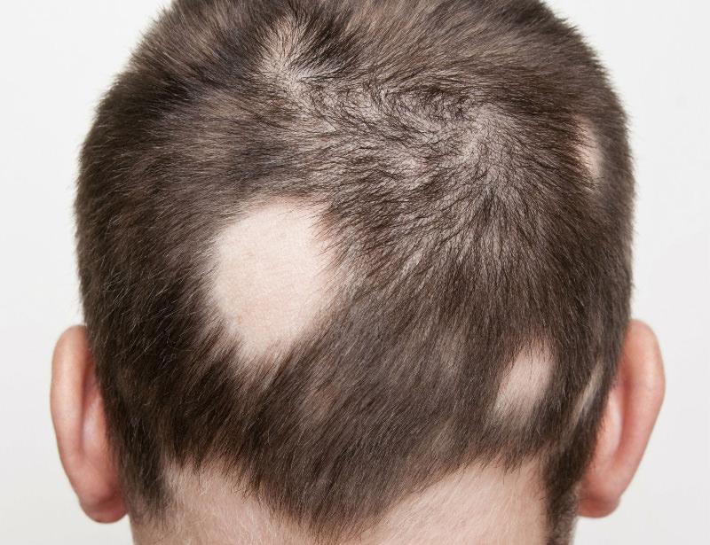 Novità nel trattamento dell'alopecia areata: arrivano gli inibitori delle Janus Chinasi