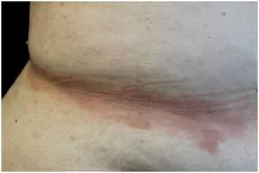 Rara dermatite lichenoide