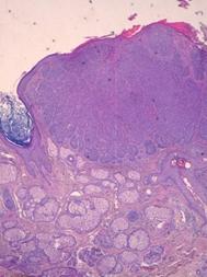 Carcinoma basocellulare pigmentato con pattern dermoscopico atipico