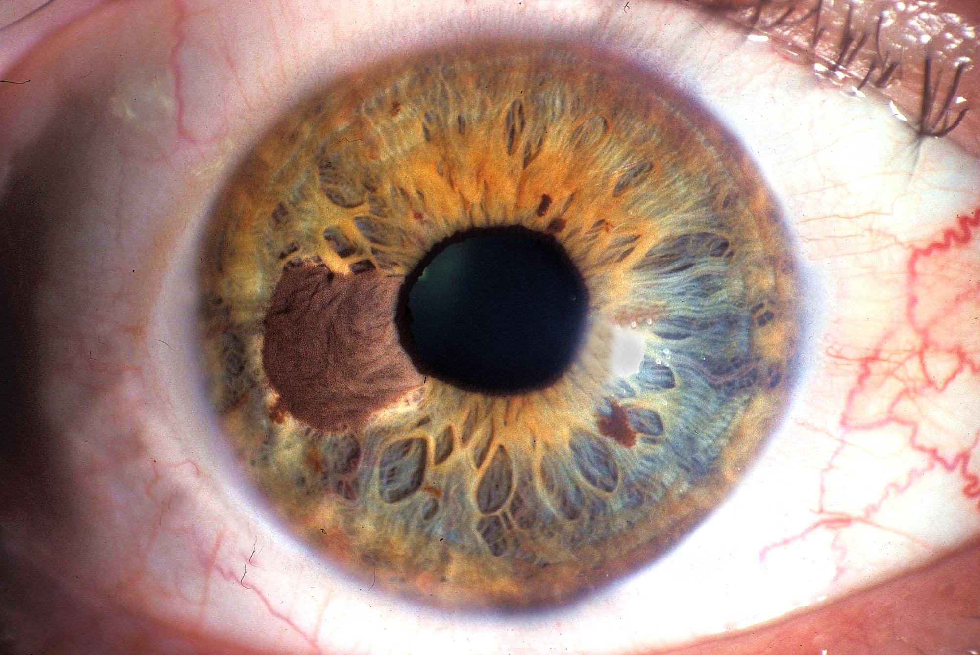 Il melanoma oculare: iter diagnostico e terapeutico