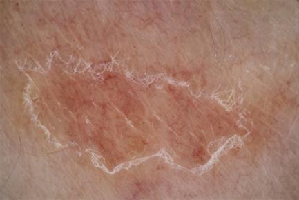Eruzione pustolosa localizzata persistente
