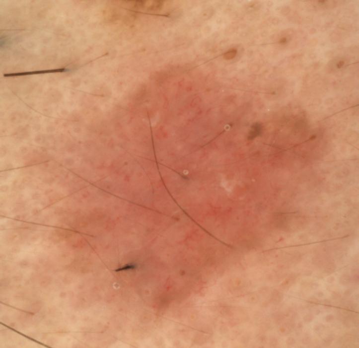 L'uso della microscopia laser confocale nella diagnosi di BCC occulti