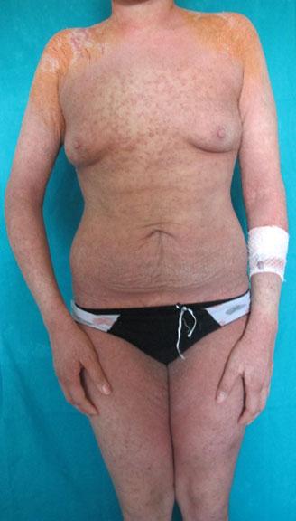 SCABBIA NORVEGESE: non sempre una facile diagnosi