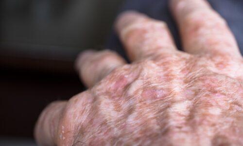 Novità nel trattamento delle cheratosi attiniche
