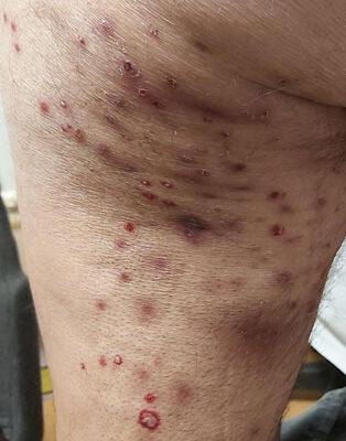Un caso di cellulite eosinofila