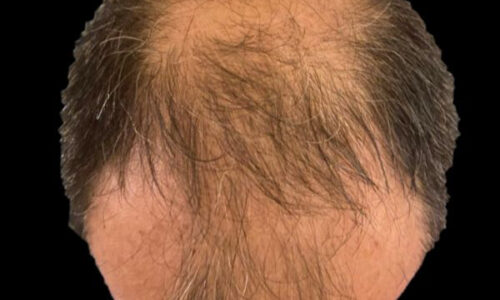 Alopecia Androgenetica: dalla patogenesi agli ultimi trials clinici