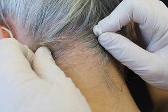 Papulosi fibrosa bianca del collo