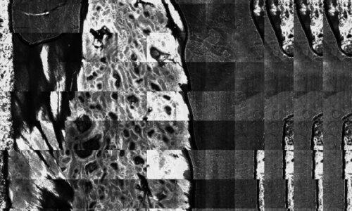 Cheratosi seborroiche post-radioterapia