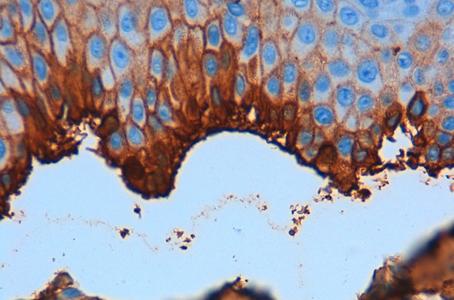 Pemfigoide bolloso in paziente con Dermatite Atopica