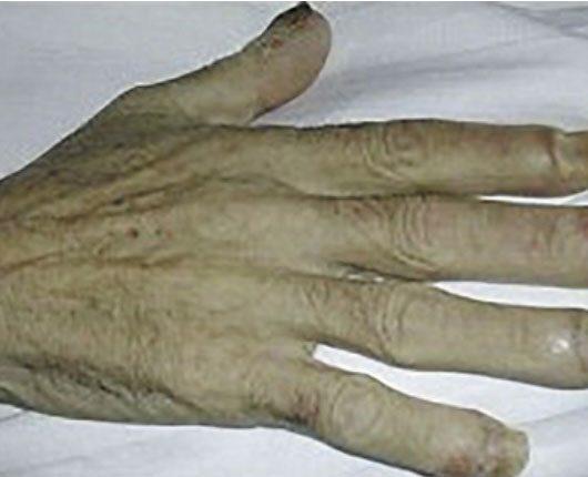 Dermatosi paraneoplastiche, un occhio internistico per il dermatologo
