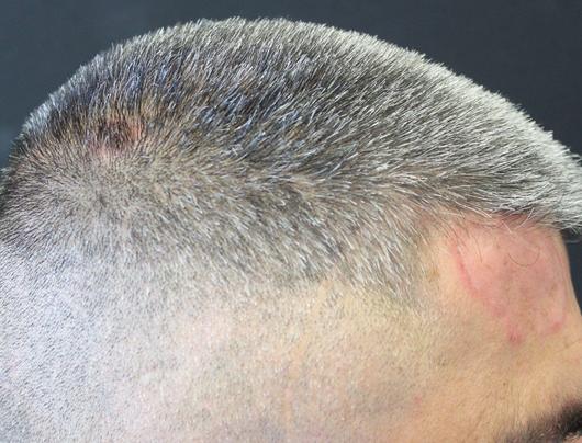 Lupus Tumidus in corso di terapia con ustekinumab