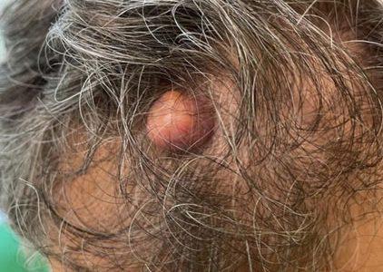 Sebaceoma del cuoio capelluto